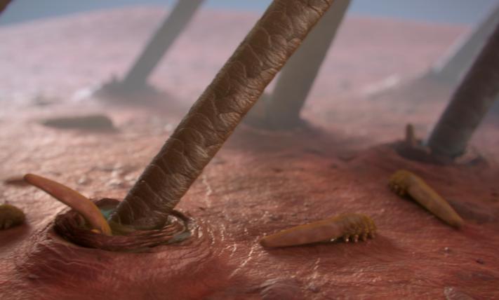 Bacteria on skin